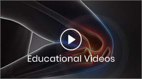 Patient Educational Video